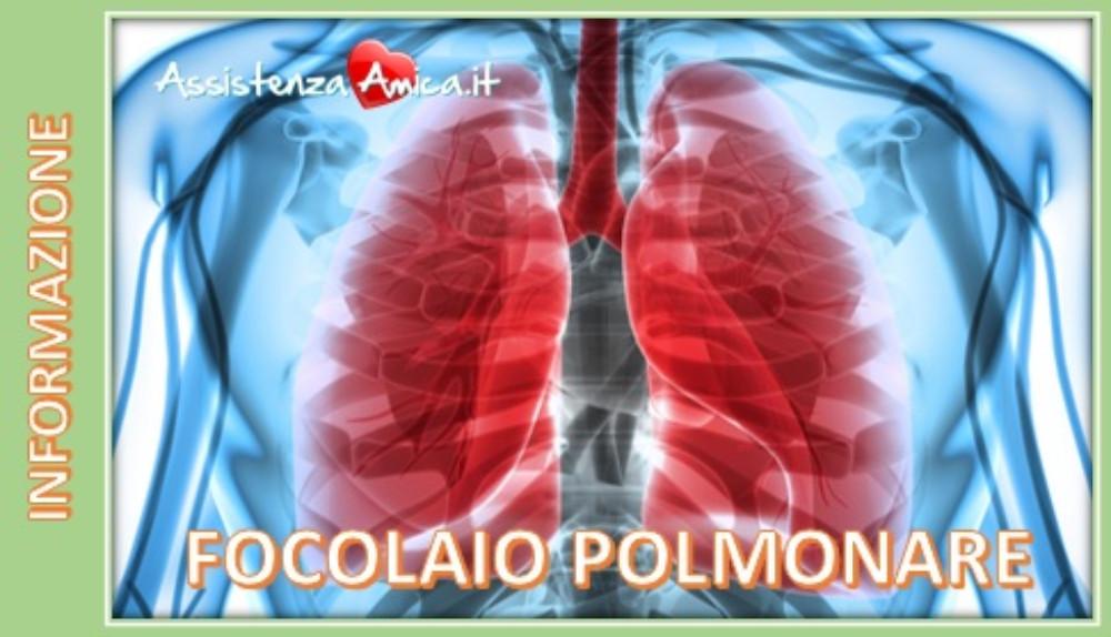Focolaio Polmonare: una possibile complicanza dell'influenza!