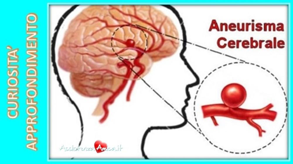 Aneurisma cerebrale: cause, sintomi, diagnosi e cura